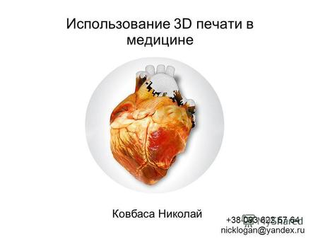 Использование 3D печати в медицине Ковбаса Николай +38 093 622 57 64 nicklogan@yandex.ru.