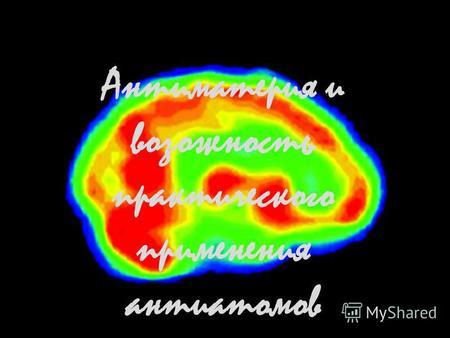 Элементарная частица гравитации 8 букв, сканворд
