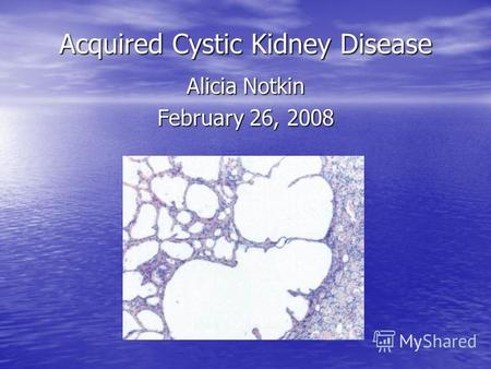 Acquired Cystic Kidney Disease Alicia Notkin February 26, 2008.