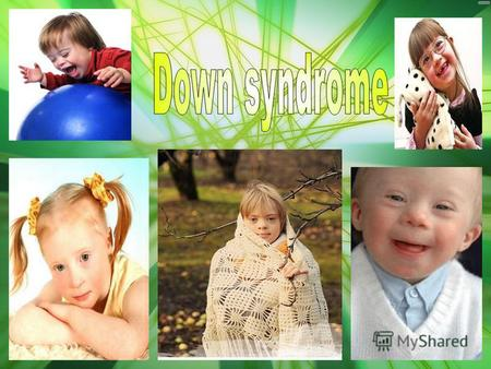 What is Down syndrome? Some people who have problems with development have Down Syndrome. Dr John Langdon Down is the first person to have identified.