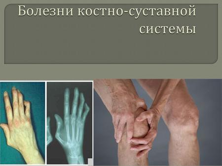 Презентация школа болезни суставов и позвоночника реабилитация травмы локтевого сустава